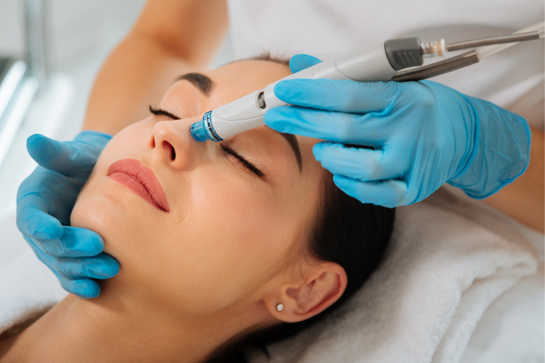 Close up of a woman receiving the HydraFacial wrinkles treatment