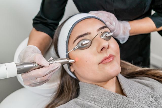 A woman getting an IPL Photofacial treatment