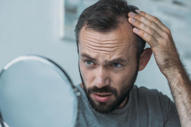 A man with thinning hair looking concerned