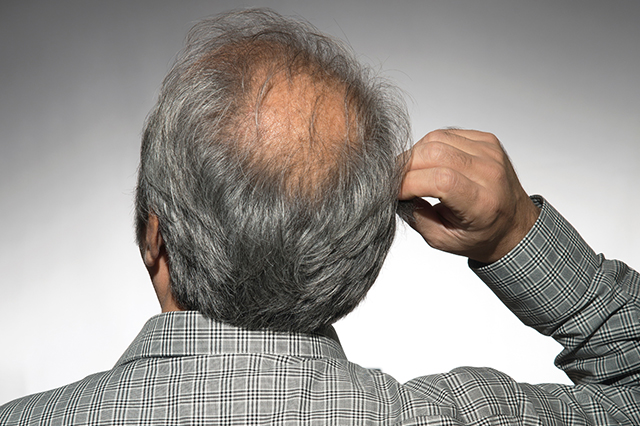 The back of a man's balding head