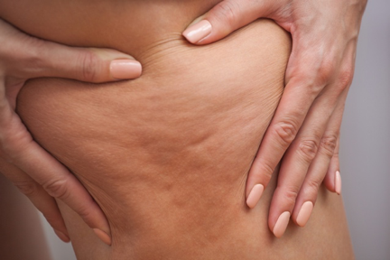 Body contouring treatment Toronto