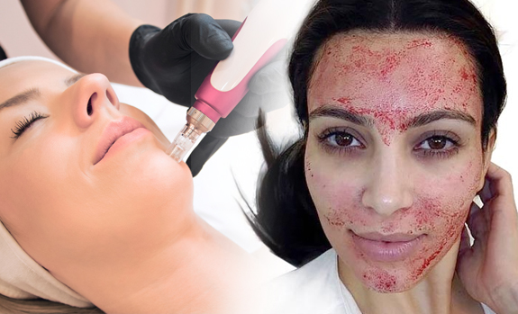 Difference Between Microneedling and Vampire Facials