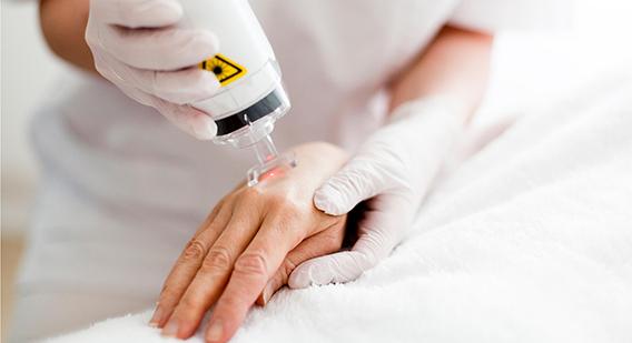 Close up of a hand receiving a Fractora treatment